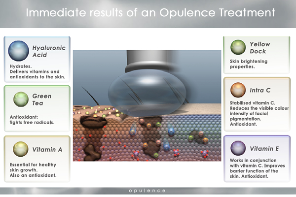 opulence intraceuticals 1