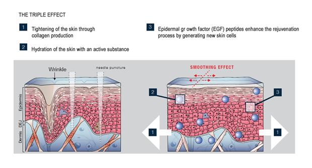 ефект микронидлинг мезотерапия