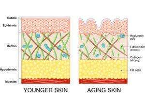 диаграма на кожата биоревитализация