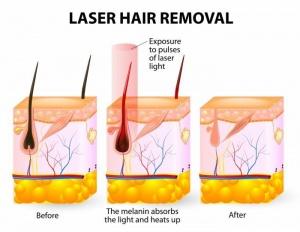 лазерна епилация софия ефект