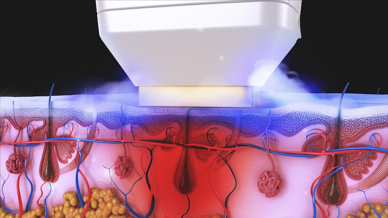 лазерна епилация софия